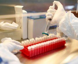 Μια απλή εξέταση αίματος αποκαλύπτει πόσο κινδυνεύει ο ασθενής με κορονοϊό
