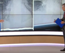 FAKE NEWS οι ακτινογραφίες «σοκ» με την αλλοίωση πνευμόνων 38χρονου απο κορονοϊό